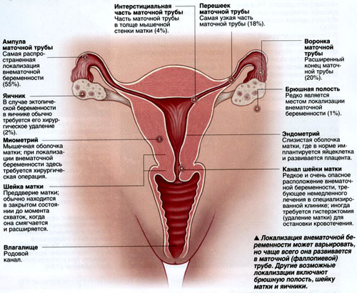 Ectopic pregnancy - signs, causes
